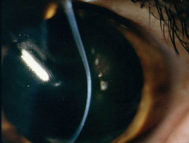 The Eye Defects Research Foundation